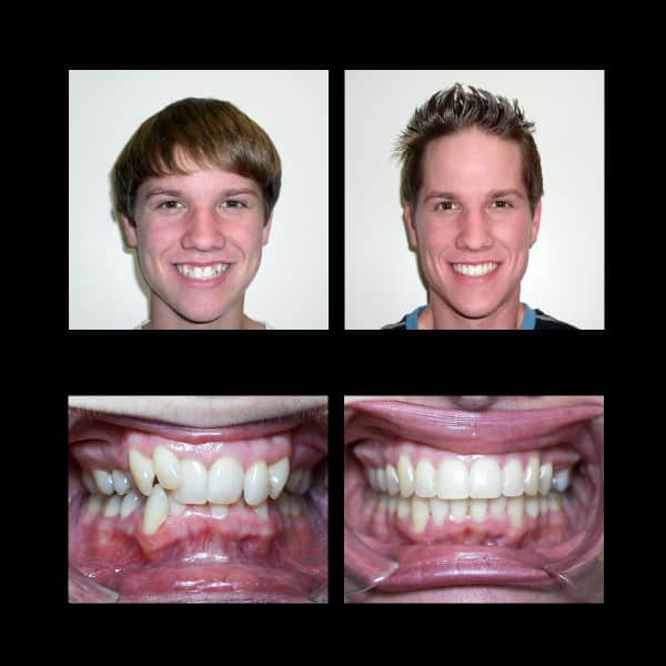 Smile Makeover Transformations